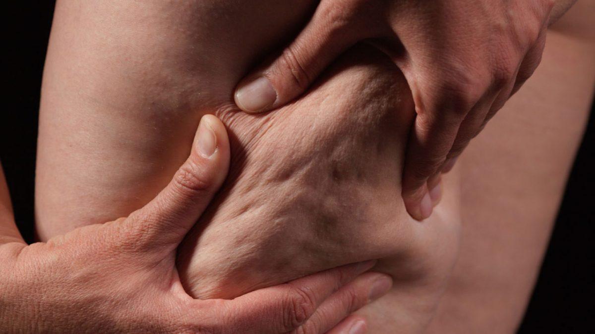 cellulite under the skin