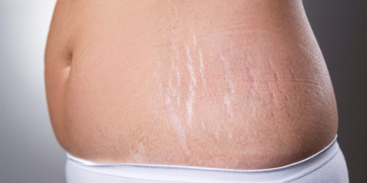 Female belly with pregnancy stretch marks closeup